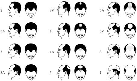 Male Hair Loss – Saini Herbal