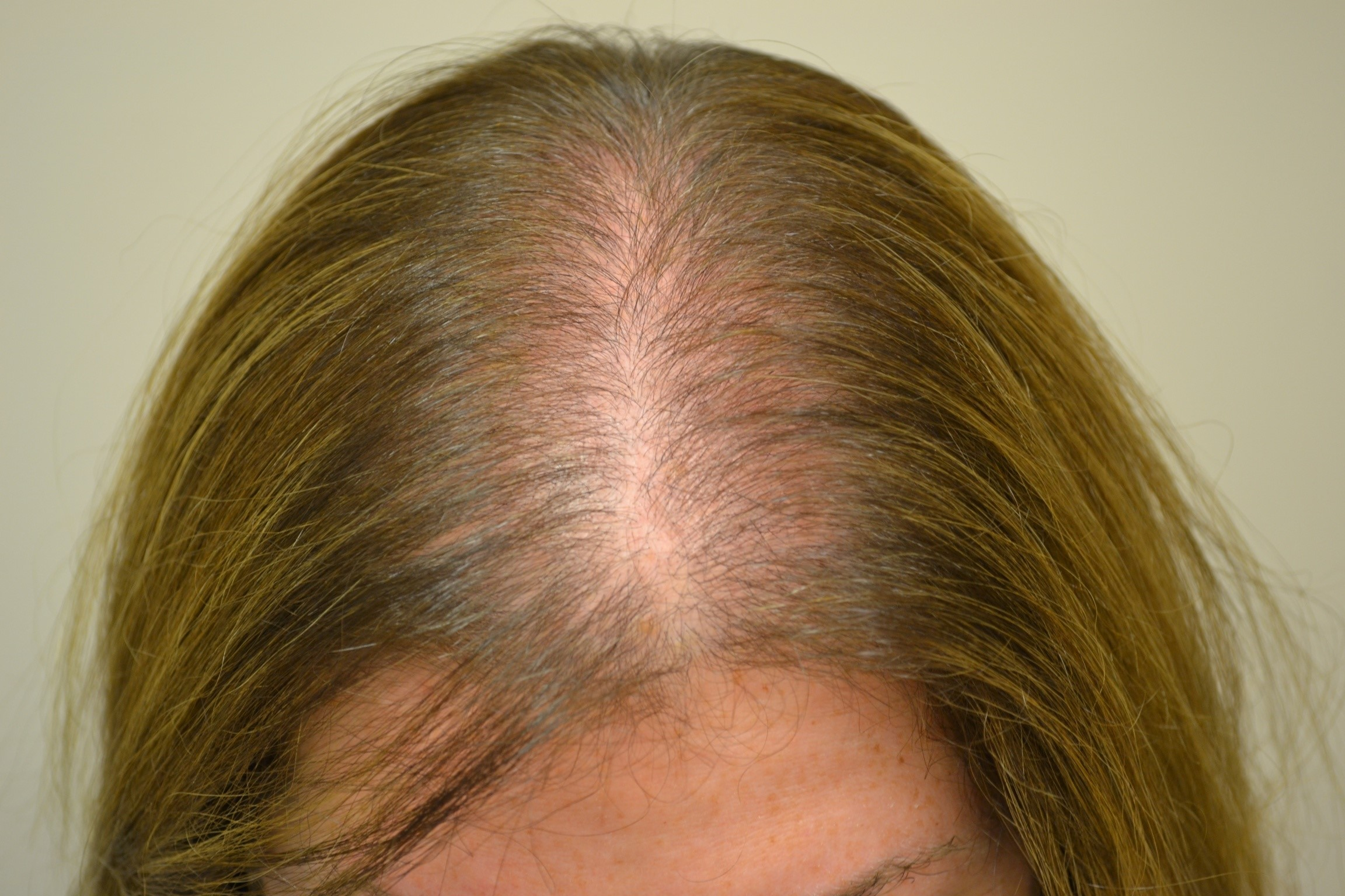 Alopecia Areata Natural Treatment