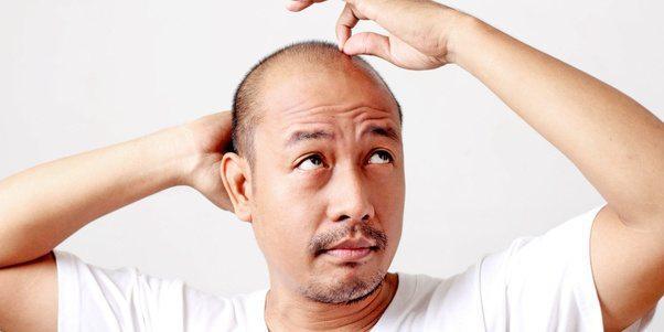 Hair Loss Treatment – Saini Herbal